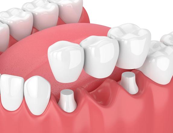 What Are Dental Bridges.jpg