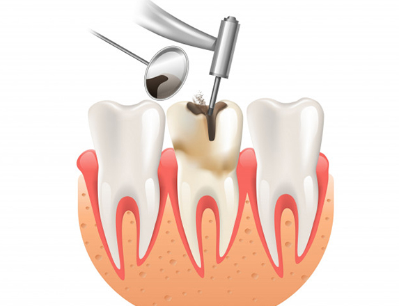 What Can You Expect When Having A Root Canal Done.jpg