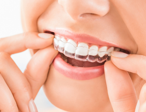 What Is Invisalign.jpg