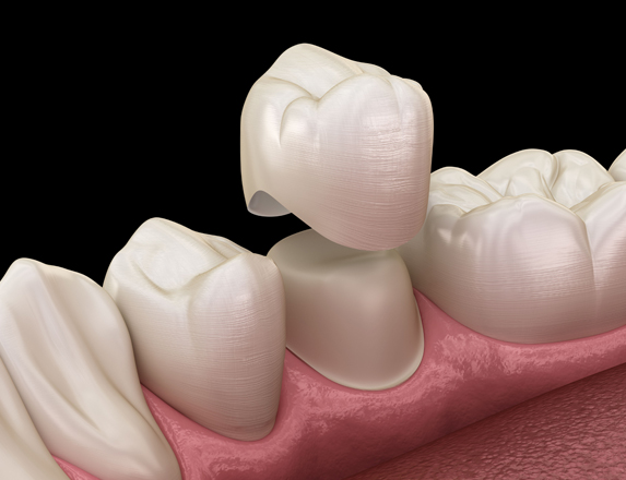 Who Is A Good Candidate For Dental Crowns.jpg