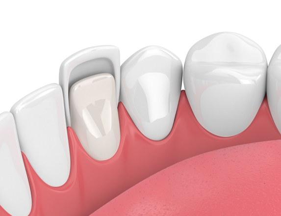 Who Is A Good Candidate For Porcelain Veneers 1.jpg