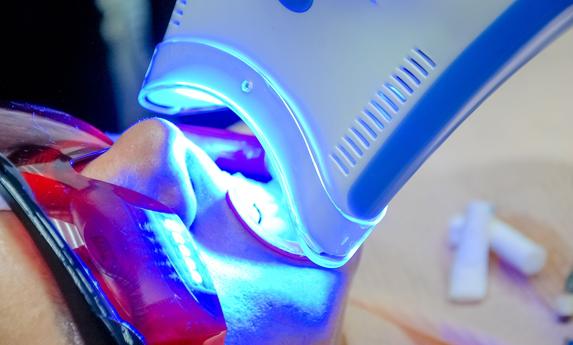 Why Is Teeth Whitening Needed.jpg